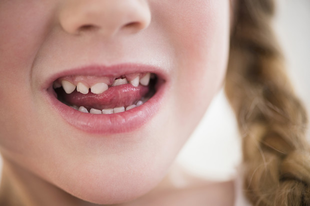 Фото №1 - Шатающийся зуб: к чему снится