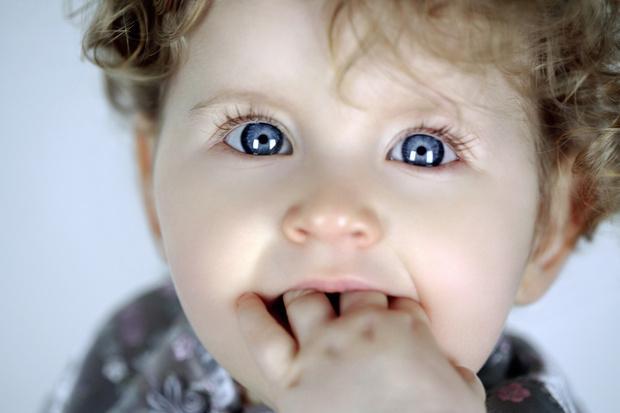 Фото №1 - Расщелина верхней губы и нёба: уже не приговор