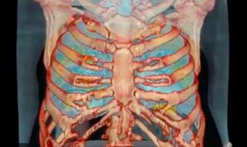 Фото №1 - Американские медики показали 3D-видео органов пациента с коронавирусом