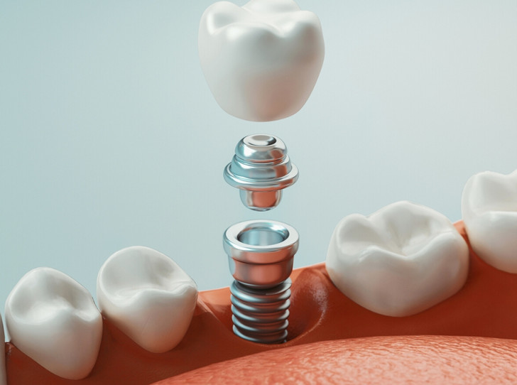 Фото №3 - Мифы и правда об имплантации зубов