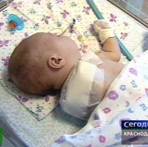 Фото №1 - Врачи лишили руки двухмесячную девочку