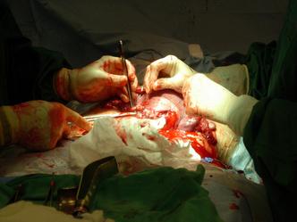 Фото №2 - Повторное кесарево сечение