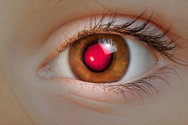 Фото №1 - Почему на фотоснимках получаются красные глаза?