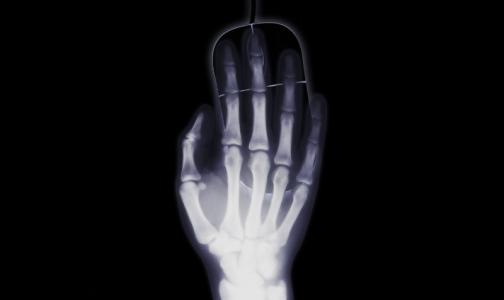 Фото №1 - Хирурги рассказали о самых странных предметах, обнаруженных внутри пациентов