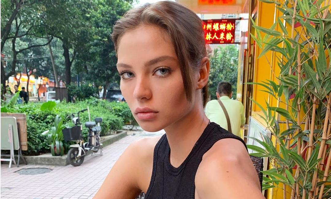Кафельникова объяснила, почему ей пришлось «сдуть» губы