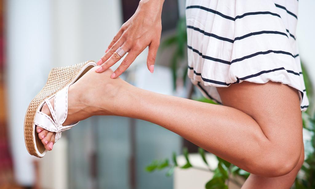 Ноги без варикоза: 9 эффективных принципов профилактики