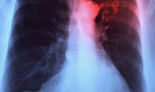 Фото №1 - За год в России нашли более 2,5 тысяч больных туберкулезом мигрантов