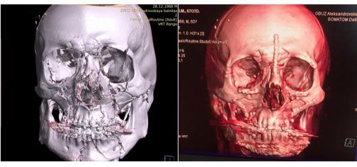 В петербургской больнице, как пазл, сложили лицо пострадавшему в ДТП туристу из Германии