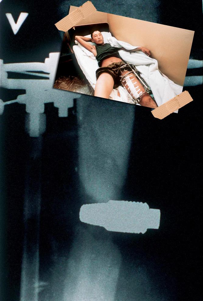 Фото №8 - Граната, банка варенья, вибратор и еще 12 удивительных вещей, застревавших в человеке