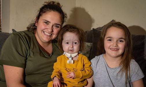 Фото №1 - Врачи рассказали, как живет единственная в мире девочка с «болезнью Бенджамина Баттона»