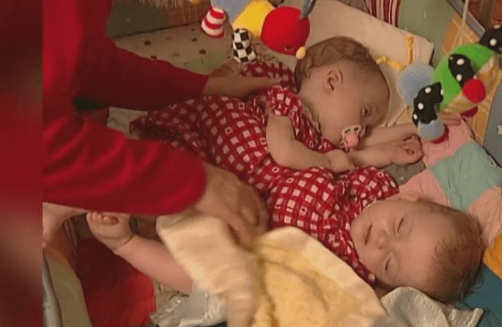 сиамские близнецы, история сиамских близнецов, сиамские близнецы тогда и сейчас, реальная история, история из жизни, как сложилась жизнь сиамских близнецов, что стало с сиамскими близнецами