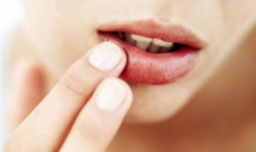 Фото №1 - Ученые нашли виновника «простуды» на губах