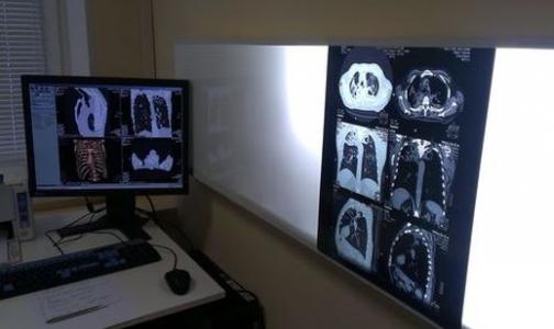 Фото №1 - Прокуратура заставила пятерых петербуржцев с открытой формой туберкулеза лечиться
