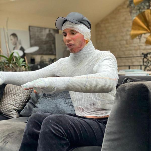 Фото №2 - Феникс во плоти: дизайнер Balmain впервые рассказал, как чуть не погиб год назад и скрывал от мира свои раны