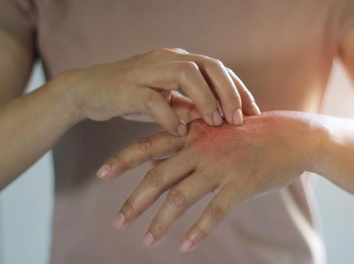 Фото №4 - Аллергия: откуда она берется, какой бывает и можно ли избавиться от нее навсегда