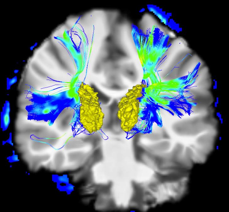 Фото №1 - Болезнь Паркинсона научились диагностировать по запаху
