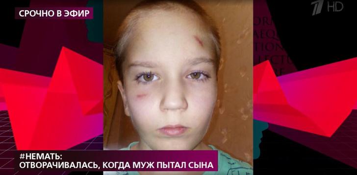 Фото №1 - Мать изувеченного 8-летнего мальчика рассказала, как покорно выходила из комнаты, когда муж бил ее сына