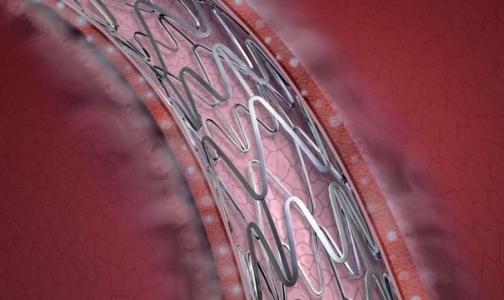Фото №1 - Российские ученые изобрели кардиоимплантаты, которые будут в пять раз дешевле импортных