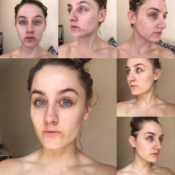 Фото №2 - Что стало с кожей девушки, которая не умывалась в течение полугода