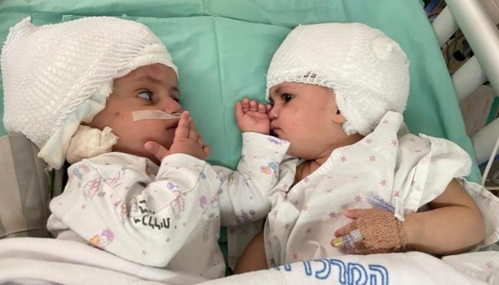 врачи разделили годовалых близнецов, сросшихся затылками
