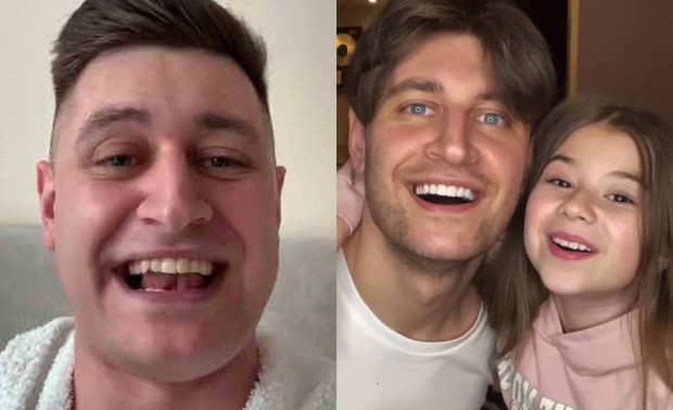Фото №7 - Что делали с зубами Бузова, Тимати и другие российские звезды: фото до и после