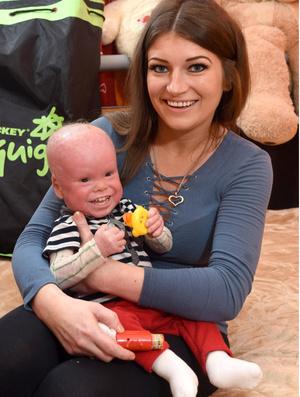 Фото №2 - Из-за редкой болезни мальчика принимают за жуткую куклу