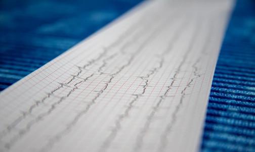 Фото №1 - Петербургский кардиолог рассказал, когда женщины рискуют умереть после перенесенного инфаркта больше мужчин