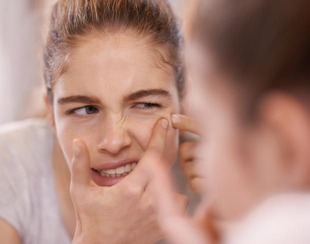 Фото №1 - Доказано: люди, страдающие акне, медленнее стареют