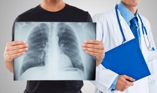 Фото №1 - Врач: Флюорография — огромные затраты для бессмысленного обследования здоровых людей