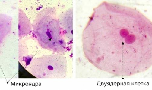 Фото №1 - Студентка обнаружила влияние мобильных телефонов на клетки человека