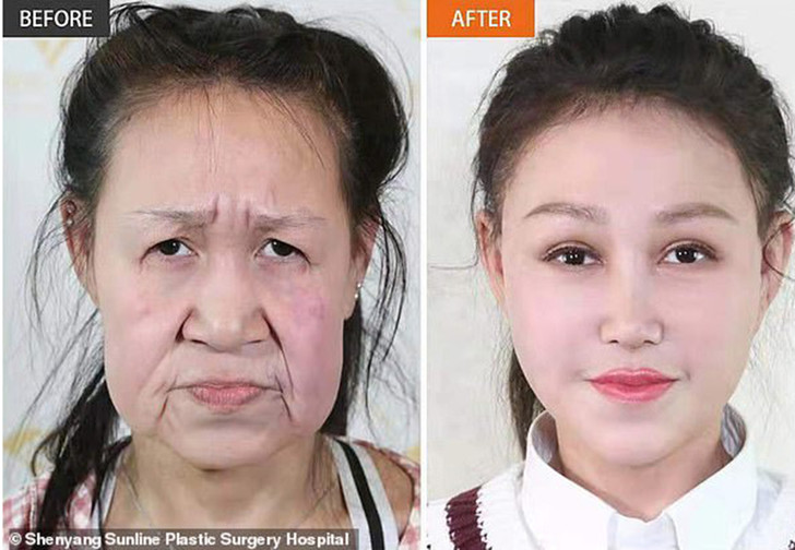 Фото №1 - Китайская девочка из-за редкой болезни в 15 лет выглядела как старушка, но пластическая операция все исправила (фото)