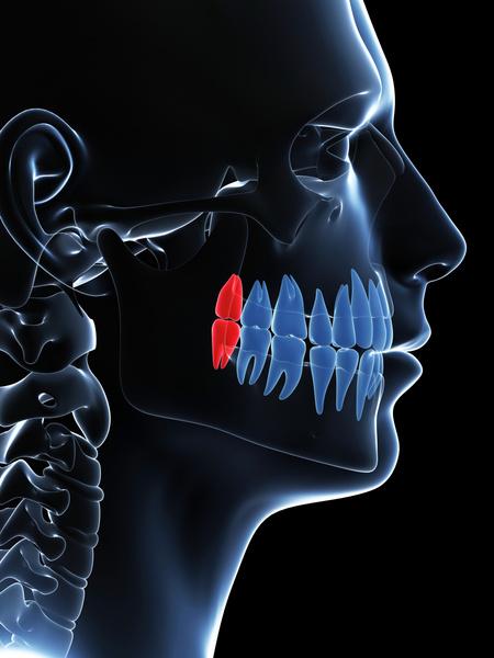 Что делать, если лезет зуб мудрости и болит