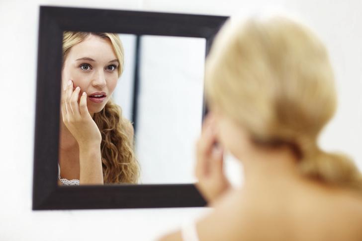 Фото №2 - Акне во время беременности: 8 вопросов дерматологу