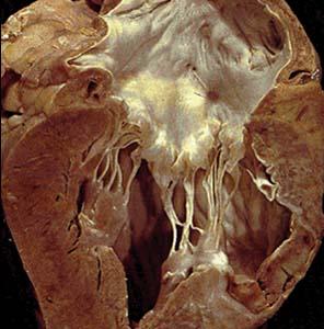 Фото №1 - Болезни сердца активизируют защиту организма