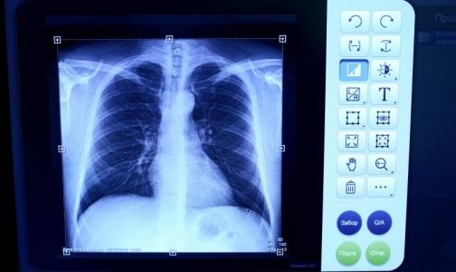 Фото №1 - За полгода в Петербурге смертность от болезней органов дыхания выросла почти на 30%