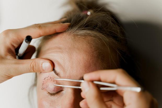 Фото №8 - «Лисьи глазки»: как подтяжка Беллы Хадид стала трендовой процедурой, но почему она не всегда украшает
