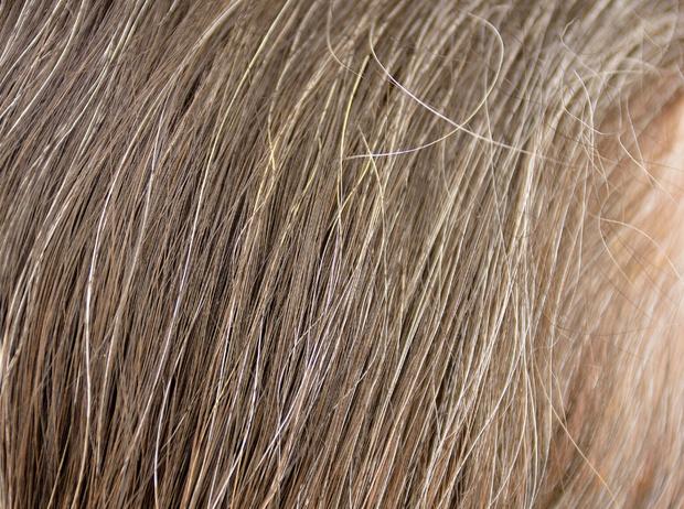 Фото №3 - Почему волосы седеют из-за стресса, и как это предотвратить