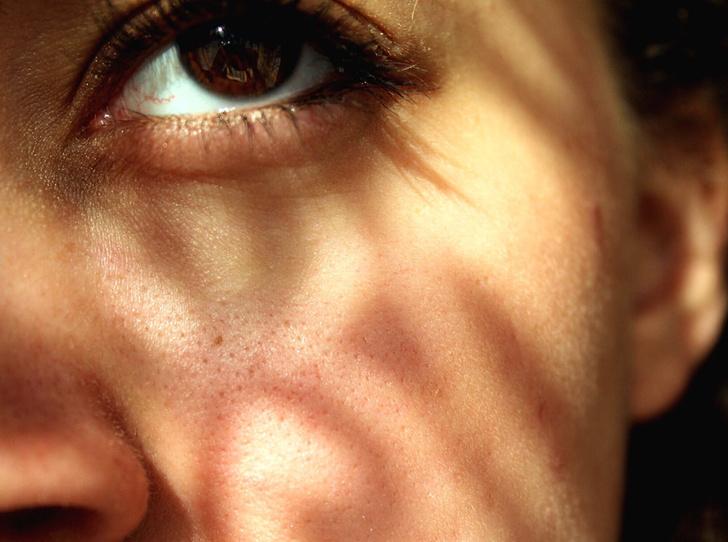 Фото №2 - Витамин D и старение кожи