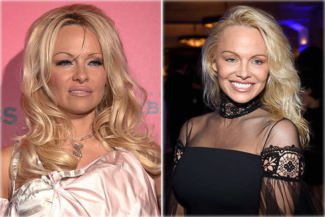 Русские звезды до и после пластики фото