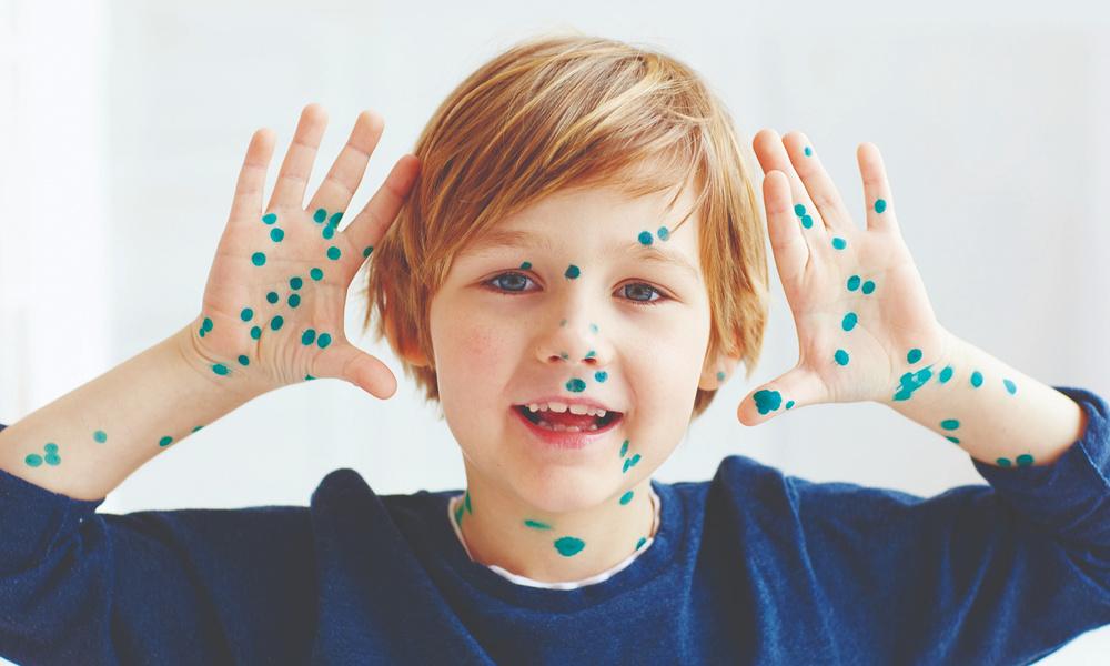 Чем отмыть зеленку с кожи: после ветрянки у ребенка — www.wday.ru