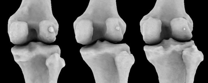 Фото №1 - Считавшаяся утраченной кость стала чаще встречаться у человека