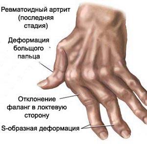 Фото №1 - Курение помогает остановить артрит