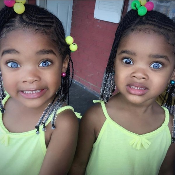 Фото №1 - 9-летние близняшки прославились из-за генетической мутации: фото