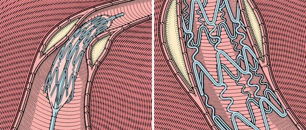 Фото №5 - Сердечный тоннель
