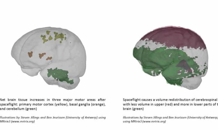 Фото №1 - Ученые рассказали, как меняется мозг в космосе