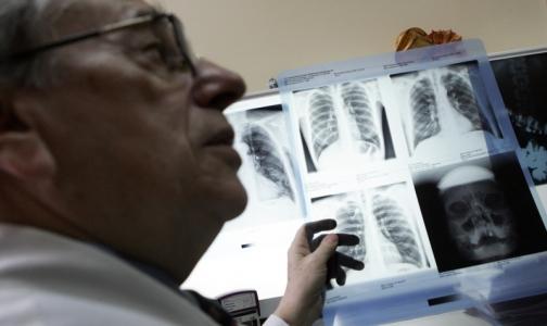 Фото №1 - Мигранты обследуются на туберкулез лучше, чем петербуржцы