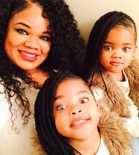 Фото №3 - 9-летние близняшки прославились из-за генетической мутации: фото