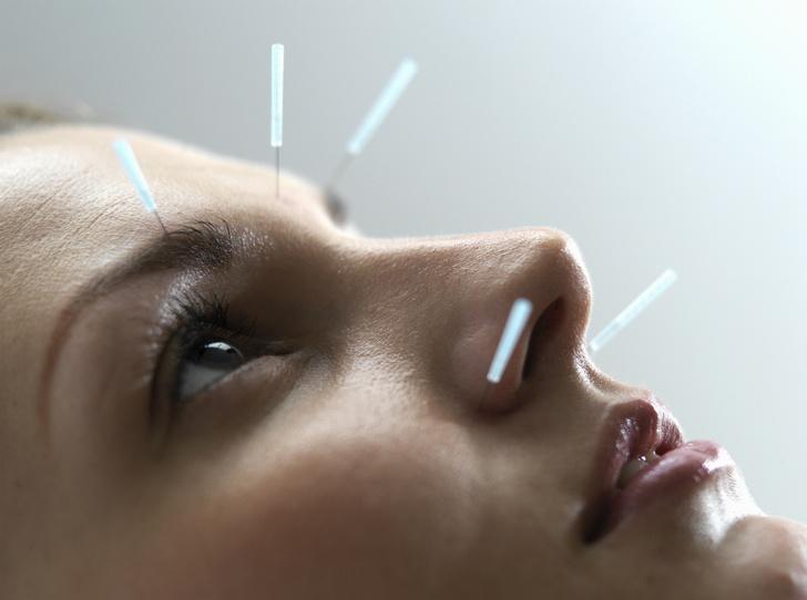 Фото №1 - Точечное оздоровление: что нужно знать об иглоукалывании