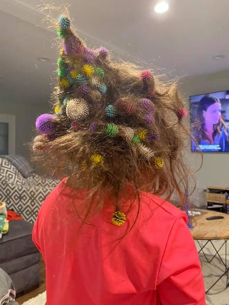 Фото №2 - Девочка едва не лишилась волос из-за популярной игрушки: фото