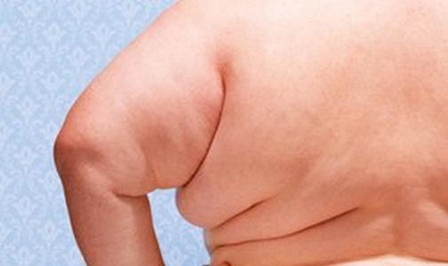 Фото №1 - Ожирение начнут лечить ботоксом